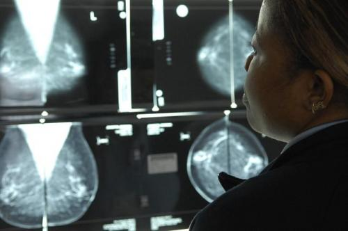Woman Looking at Mammogram Films